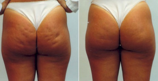 Revitol Cellulite solution before and after