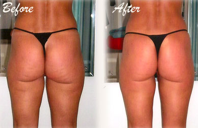 revitol cellulite solution